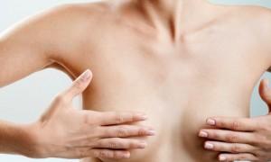 Что такое подтяжка грудных желез?
