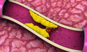 Как понизить уровень холестерина в крови?